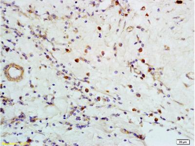 CXCR5 Polyclonal Antibody