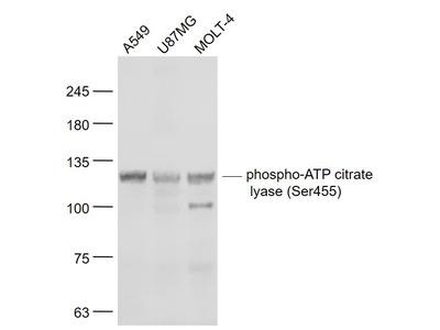 ATP citrate lyase (Ser455) Antibody