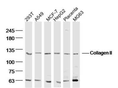 Collagen 2 Antibody