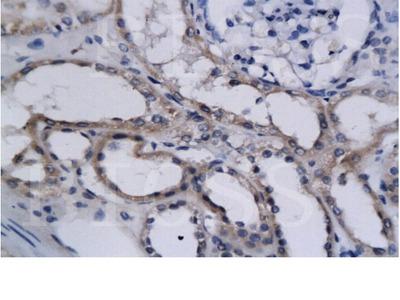 HIF2 alpha Antibody