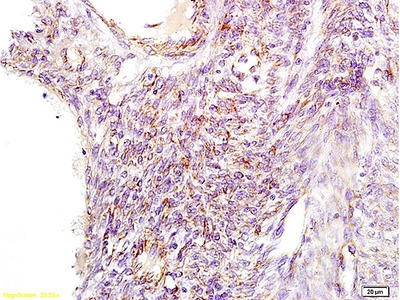 GNPAT Antibody