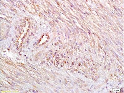 ETBR/Endothelin B Receptor Antibody