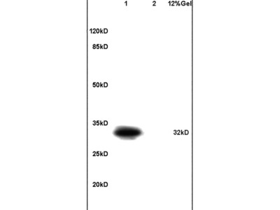 DARPP32 (Thr34) Antibody