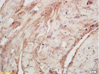 PLASTIN3/T Plastin Antibody