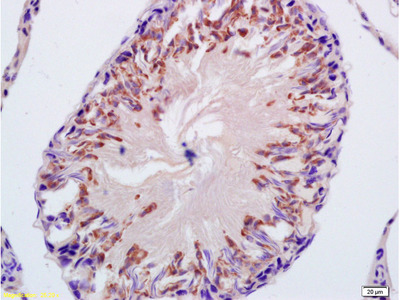 CYP21 Antibody