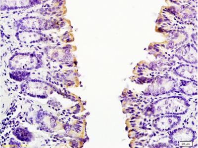 CCL24 Antibody