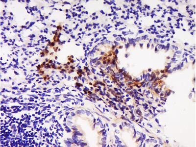 ABCD1/CCL22 Polyclonal Antibody