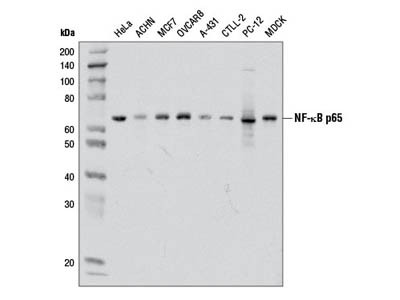 Western Blot for P65 (NF-kB) Expression in Glioma Stem Cell Whole Cell Lysate