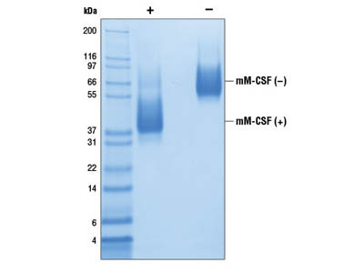 Mouse Macrophage Colony Stimulating Factor (mM-CSF)