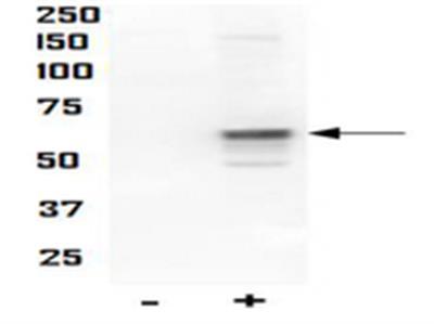 Anti-phospho-AKT (Thr34)