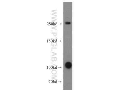 TAF1L Polyclonal antibody - KD/KO Validated