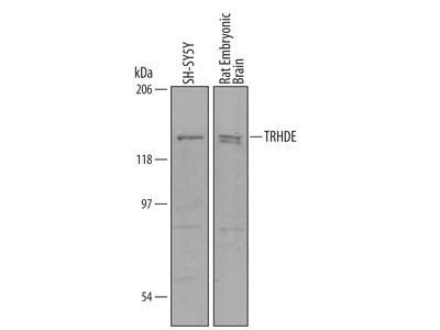 Mouse / Rat TRH-degrading Ectoenzyme / TRHDE Antibody