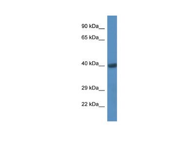 Anti C-Terminal CD44 Antibody