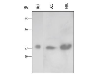 Human / Mouse / Rat Peroxiredoxin 2 Antibody