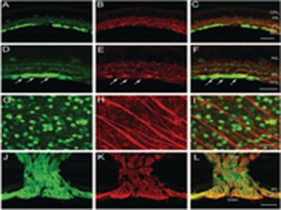 Anti-Neurofilament L Antibody