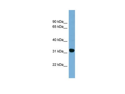 CBR1 antibody - middle region (ARP45800_P050)