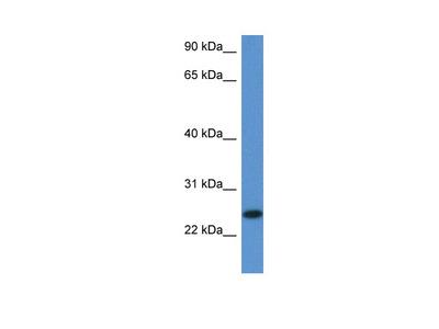 2810405K02Rik antibody - middle region (ARP52920_P050)