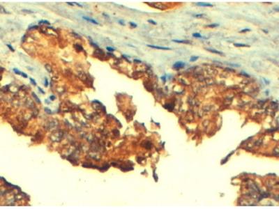 Goat Anti-ABCC4 / MRP4 Antibody (OAEB02455)