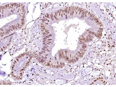 Beta Catenin (Ser45) Antibody