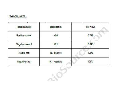 Human Hepatitis E virus antibody, IgG ELISA Kit