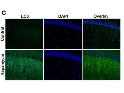 Very Good Human, Mouse, Rat, Zebrafish LC3 Antibody for Immunofluorescence