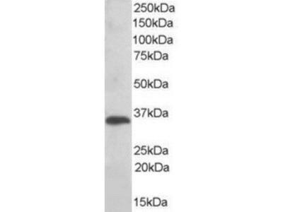 TXNDC Antibody