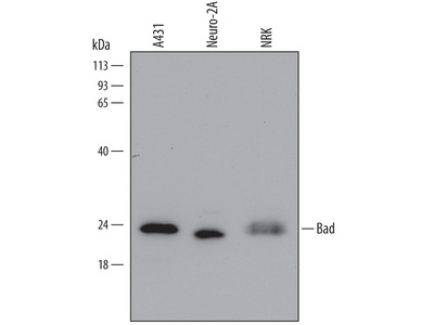 Human Bad Antibody