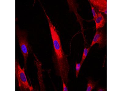 Human Collagen I alpha 1 Antibody