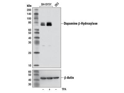 Dopamine β-Hydroxylase (DBH) Antibody