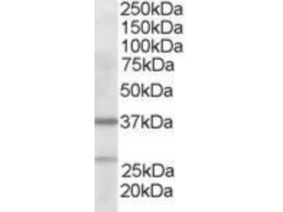 Goat Polyclonal actin-related protein 2 / 3 complex subunit 1B Antibody