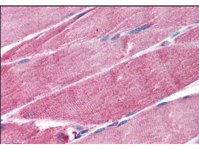 MuRF1/TRIM63 Antibody