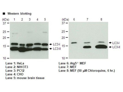 Very Sensitive Mouse LC3B Specific Antibody from MBL International