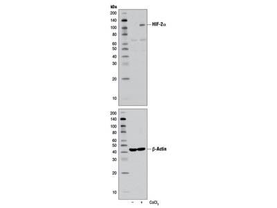 HIF-2α (D9E3) Rabbit mAb