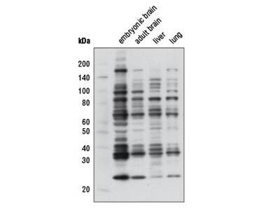Mono-Methyl Arginine (R*GG) (D5A12) Rabbit mAb
