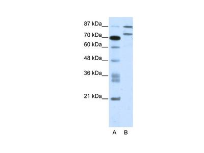 ZNF709 Antibody