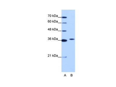 EXOSC7 Antibody