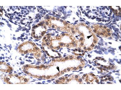 TRIM3 Antibody