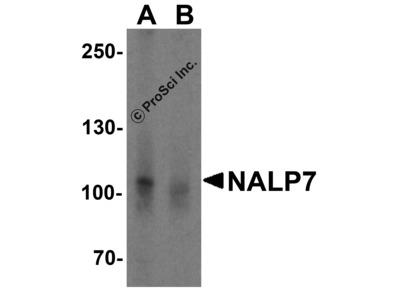 NALP7 Antibody