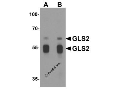 GLS2 Antibody