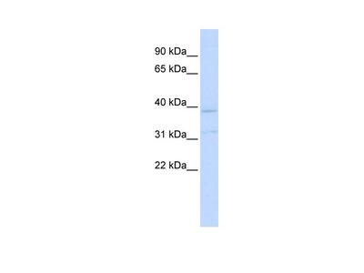 KCNK15 Antibody