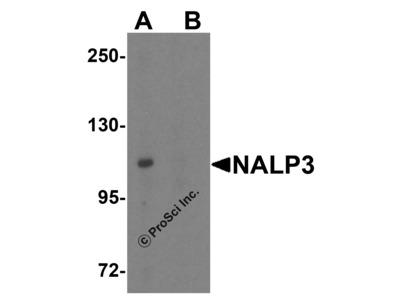 NALP3 Antibody
