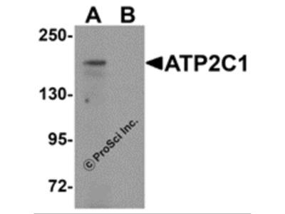 ATP2C1 Antibody
