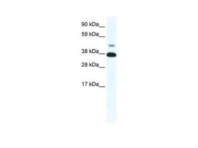 THRB Antibody