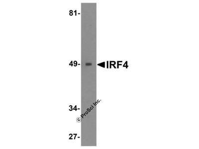 IRF4 Antibody