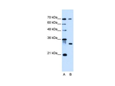 LOC92270 Antibody