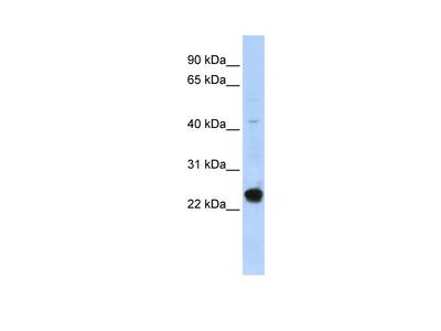 C16orf80 Antibody