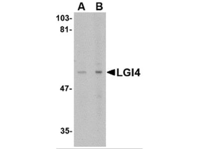 LGI4 Antibody