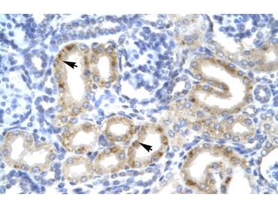TBX1 Antibody