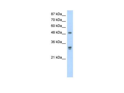 DDX19B Antibody