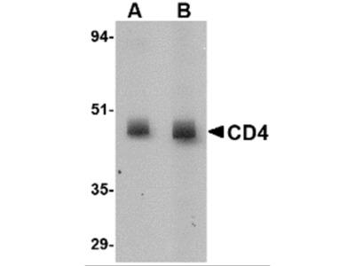 CD4 Antibody [8G1B12]